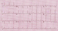 EKG of the Day (3/25)