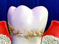 karang gigi, plak