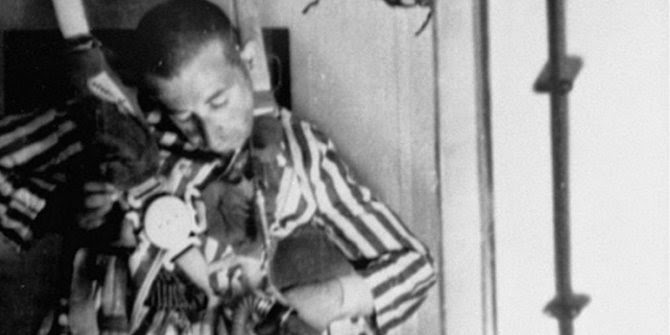 Eksperimen Nazi Paling Sadis