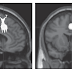 Harry Potter and the Prisoner of Mid-Cingulate Cortex