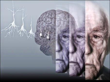 cara mengobati alzheimer