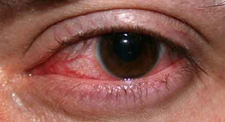 Penyebab mata merah dan bengkak