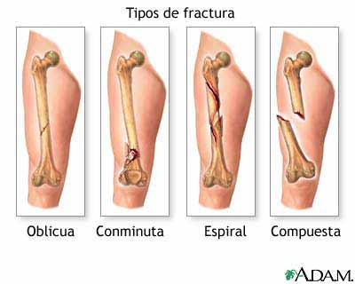 Clase Fracturas Mano y Antebrazo - esscribdcom