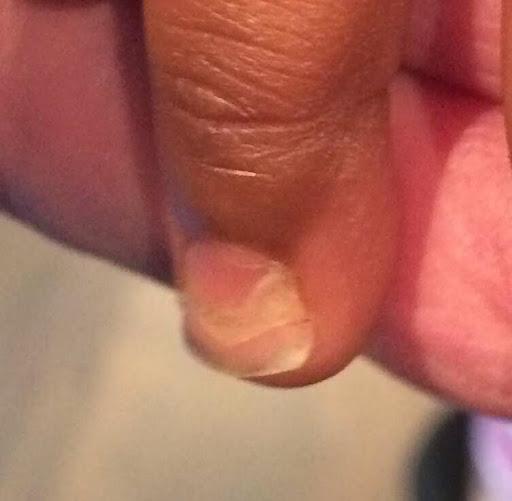 pied main bouche peau qui pèle