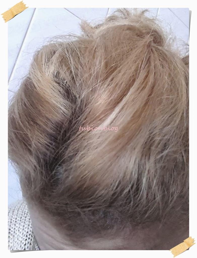 Genç Yaşta Beyaz Saçlardan Kurtulmanın 8 Basit Yolu