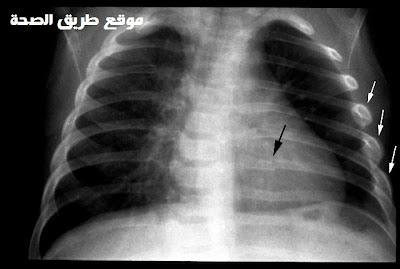 صورة بأشعة X توضح وجود كسور بالأضلاع