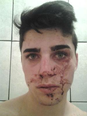 Maisson Dydimes Portes, de 19 anos, contou que é bissexual e que os rapazes o agrediram por esse motivo (Foto: Arquivo Pessoal)