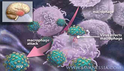 Ilustrasi: Infeksi virus HIV pada tubuh manusia