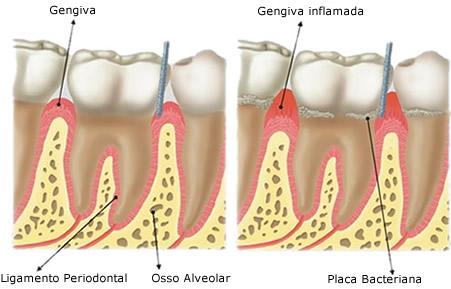gengivite, periodontite, doença periodontal