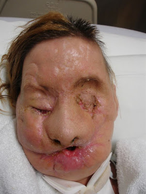 Face_transplant_recipient_Charla_Nash