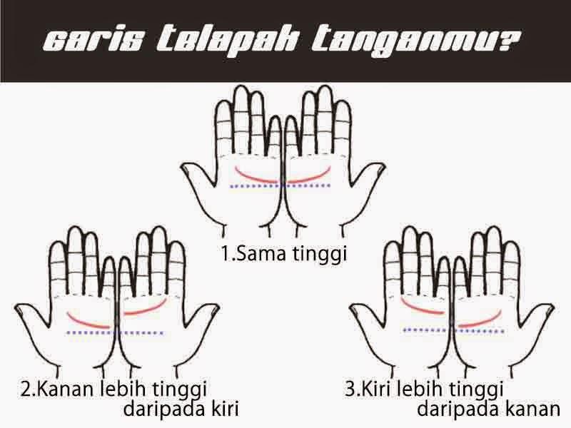 Bentuk garis telapak tangan