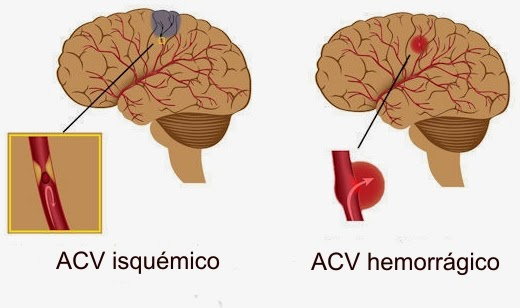 Accidente cerebrovascular riesgo