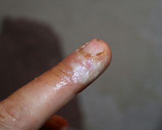 Last night my finger with dead skin
