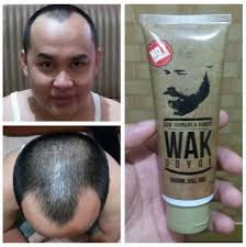 Wak doyok dapat diaplikasikan untuk mengatasi rambut botak