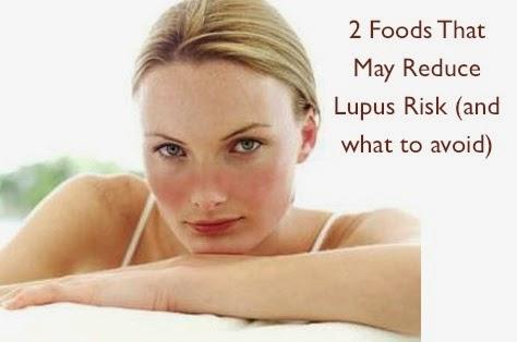 Obat Herbal Lupus Eritematosus Sistemik