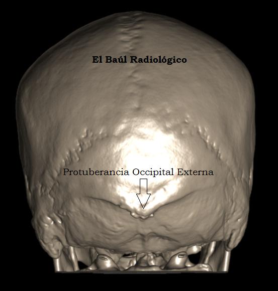 El Baúl Radiológico: PROTUBERANCIA OCCIPITAL EXTERNA (Ossified Spur ...