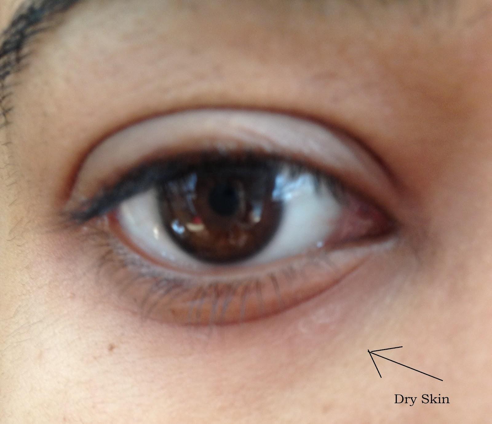 dry patch of skin under my eye