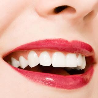 وصفة سهلة لتبييض الاسنان
