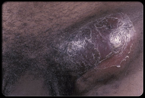 ... Blue Waffle Infection ... It's Real ?? ~ Blue Waffles Disease Pictures: http://bluewafflesdiseasepictures.blogspot.com/2011/12/i-got-blue-waffle-infection-its-real.html