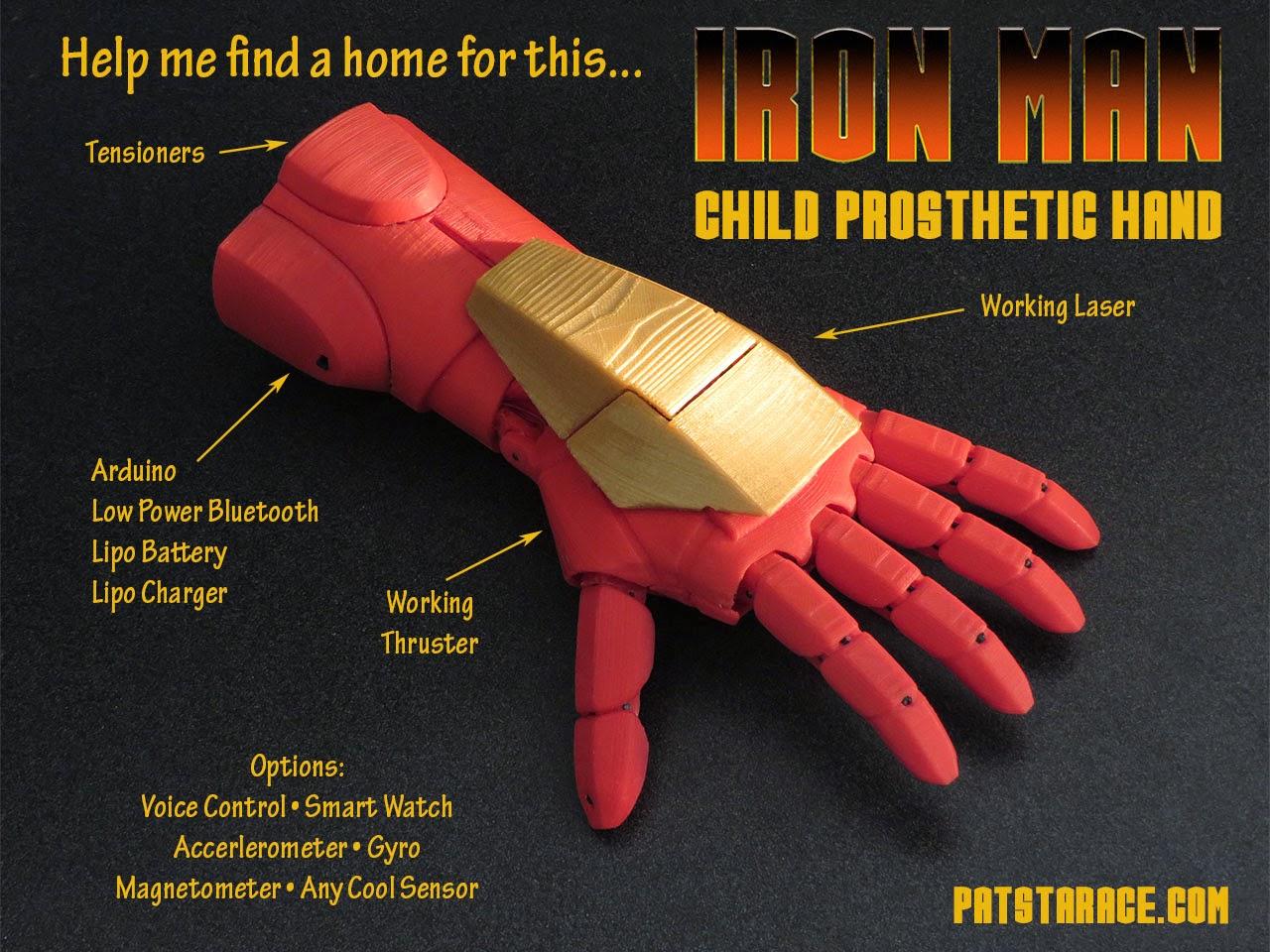 iron man child prosthetic hand