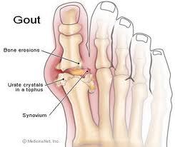 Chế độ ăn uống, kiêng kị cho người bị mắc bệnh Gout