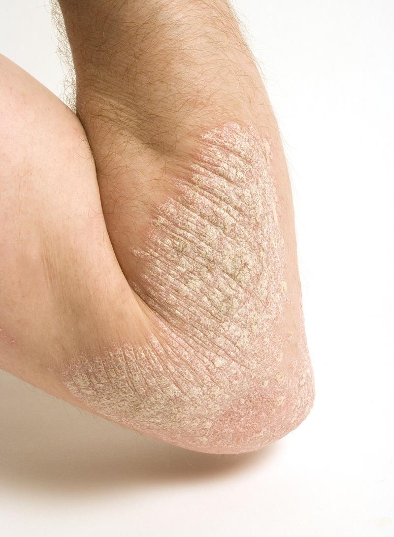 HEALTH CORNER: Eczema