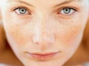 Cara Menghilangkan Pori-Pori Wajah