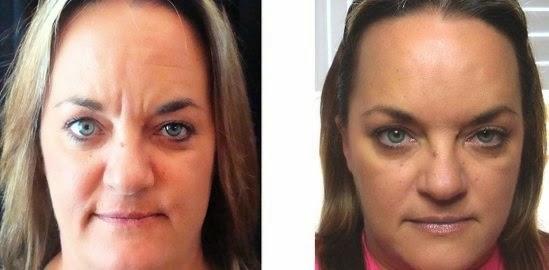 facial skin revitalization