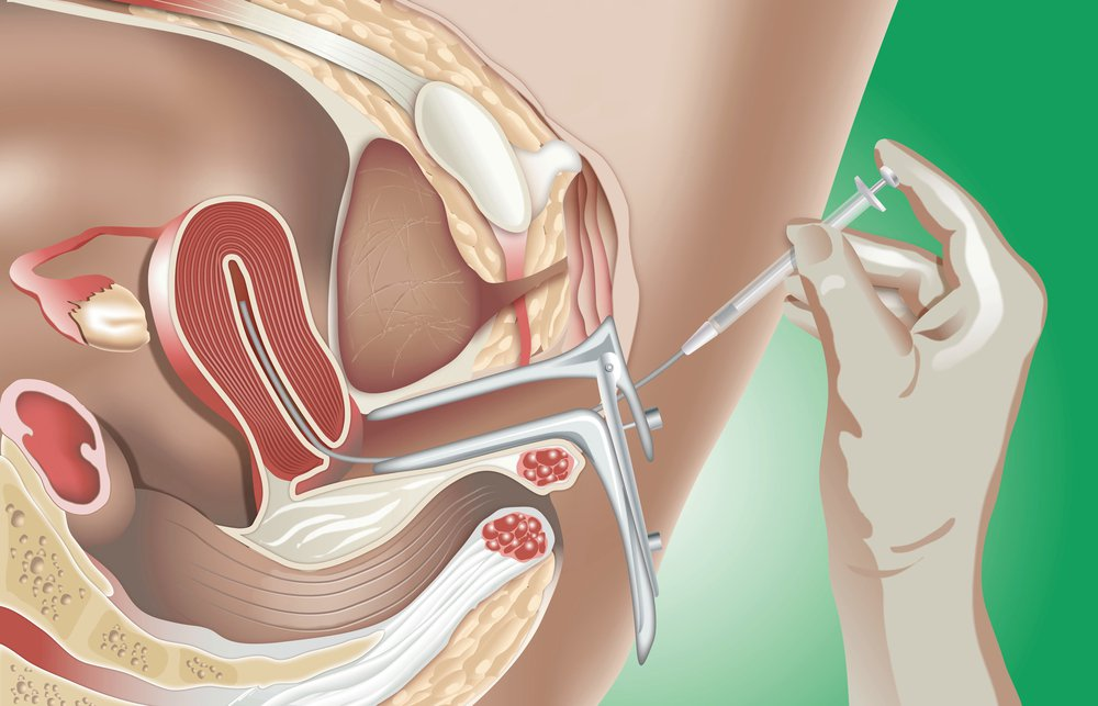 rabota-donorom-spermi