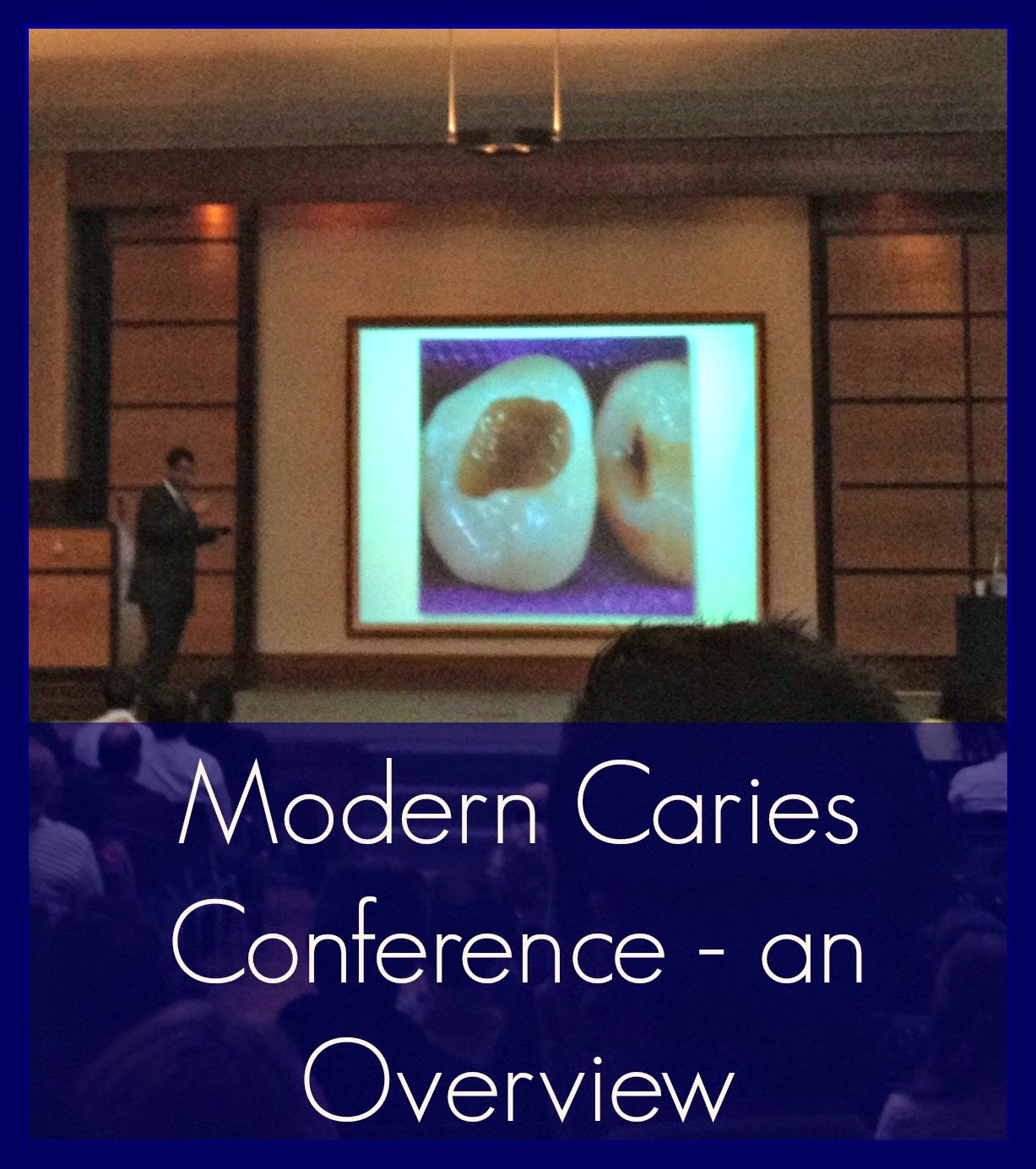 Tooth germ modern caries conference with professor avijit for Art a minimal intervention approach to manage dental caries
