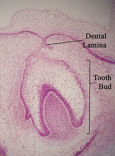 dental lamina and dental bud