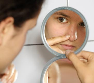 comment traiter les points noirs du visage