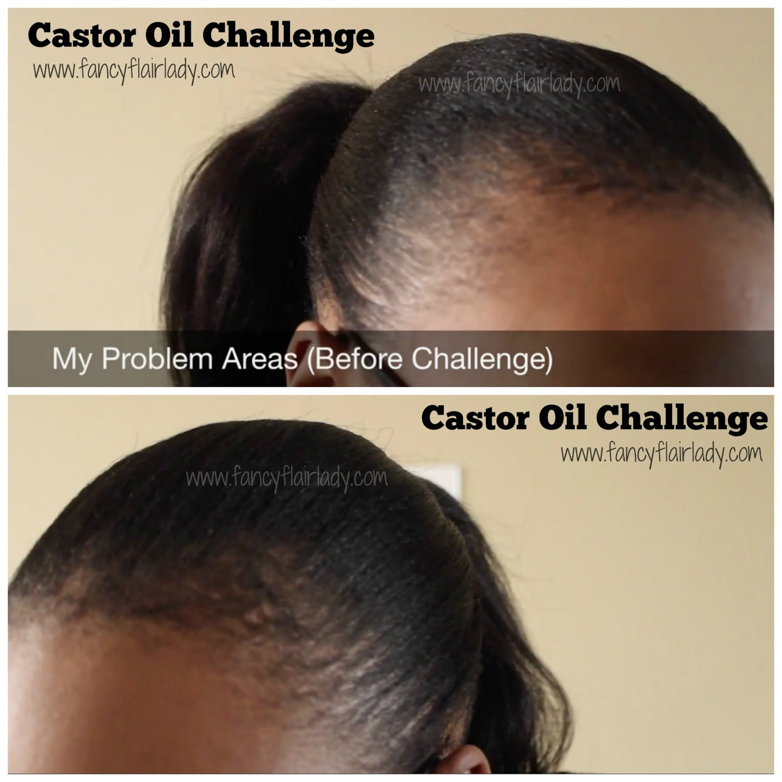 Im Joining The Castor Oil Challenge FancyFlairLady