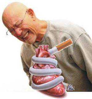 Gb. Penyebab Penyakit Jantung Koroner (PJK)