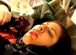 ازمجروحان کمپ اشرف