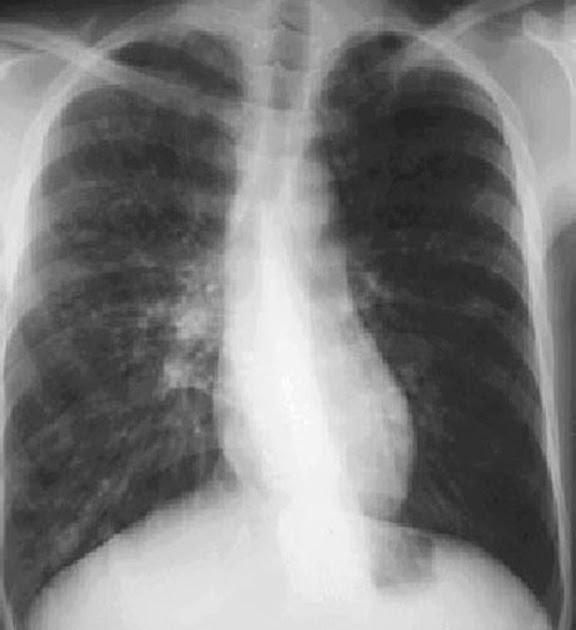 radlog bronchiectasis x ray features