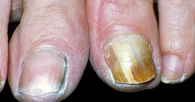 Ayuden sanar el hongo de las uñas y los pies