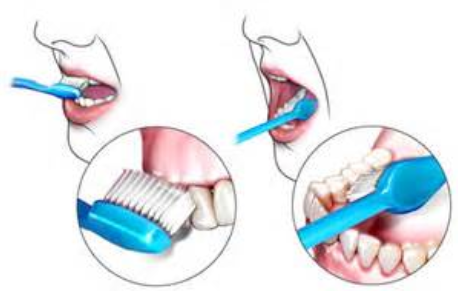 Daily Brushing - How to Get Rid of Tonsil Stones Naturally