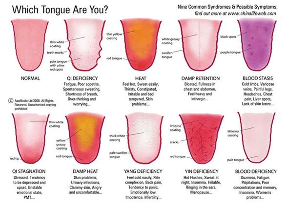 White Coating On Tongue