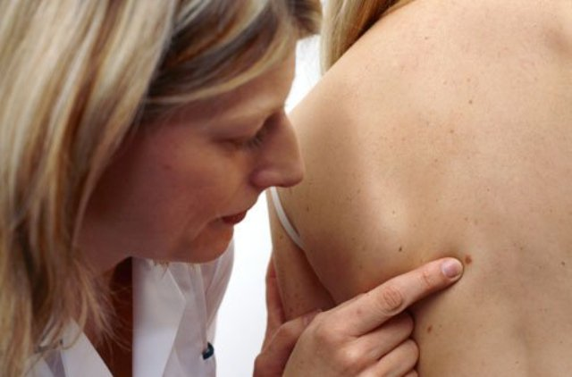 early-signs-of-skin-cancer-and-medication