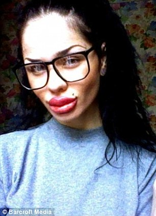 ... like Jessica Rabbit gets world's biggest lips after 100 injections