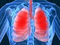 Ruidos Pulmones