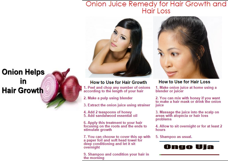 Ongo Uja: Using Onions for speedy hair growth, amazing