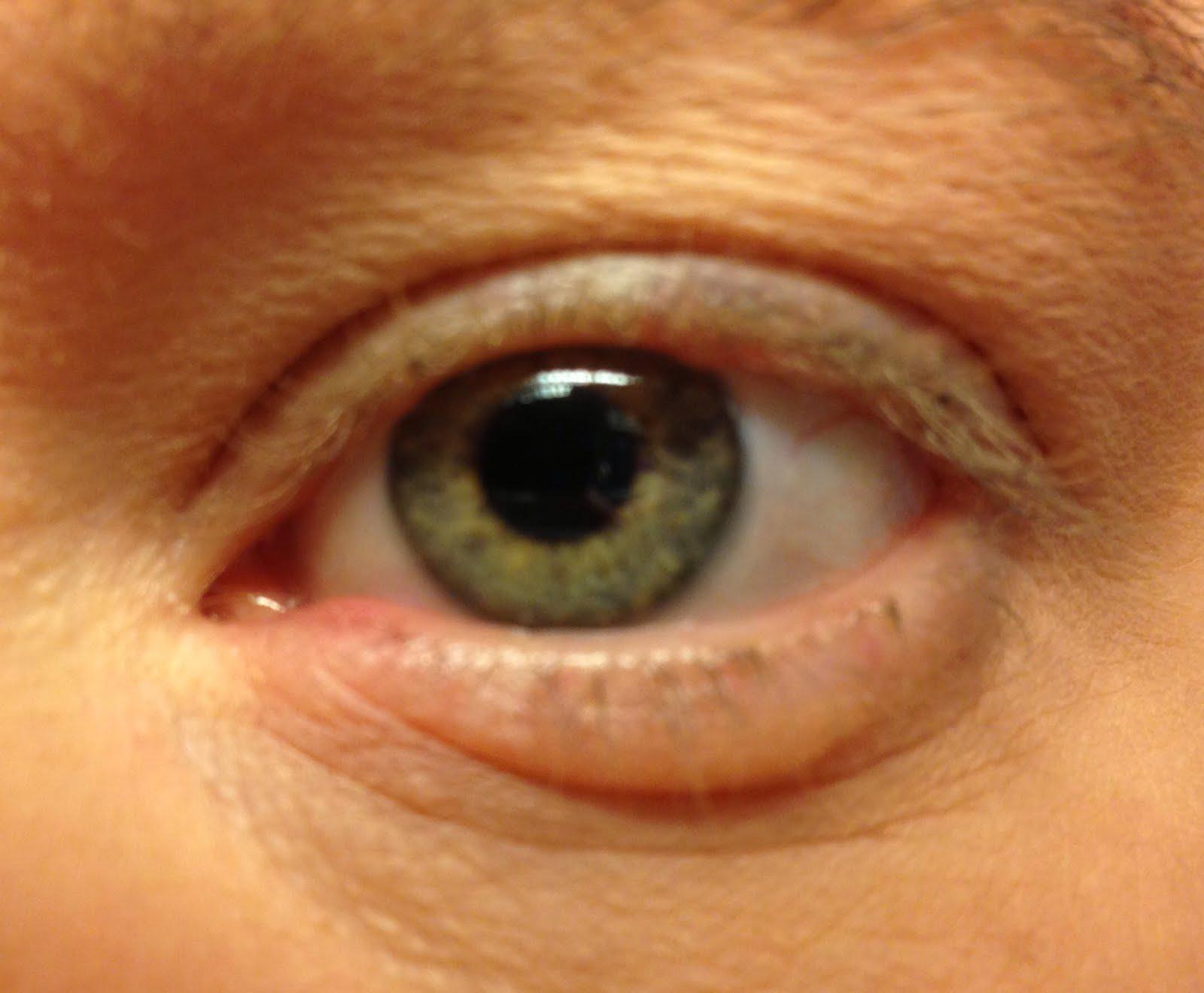 vätskefyllda påsar under ögonen