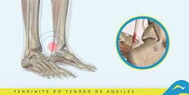 Tratamento de dores e doenças articulares