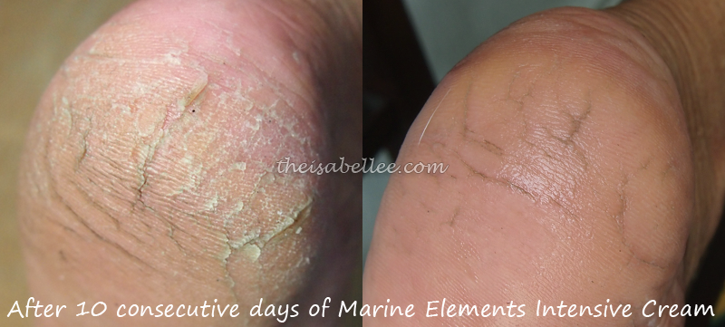 Relieving cracked heel with Marine Elements Intensive Cream