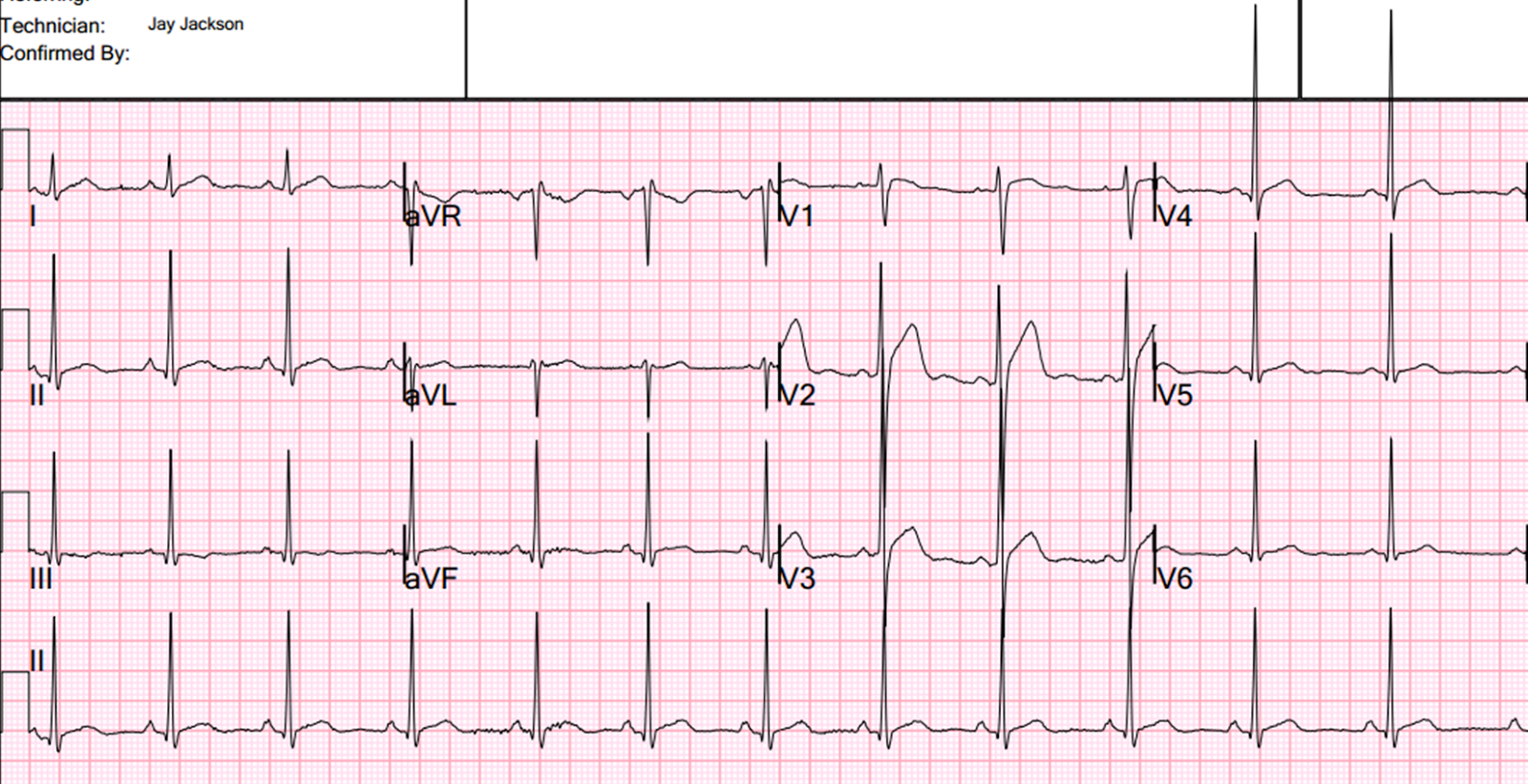 Dr Smiths ECG Blog Mm Of ST Elevation In Lead V At The J - Elevation point