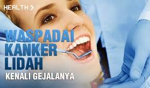 http://herbalnya.blogspot.com/2014/05/obat-herbal-kanker-lidah.html