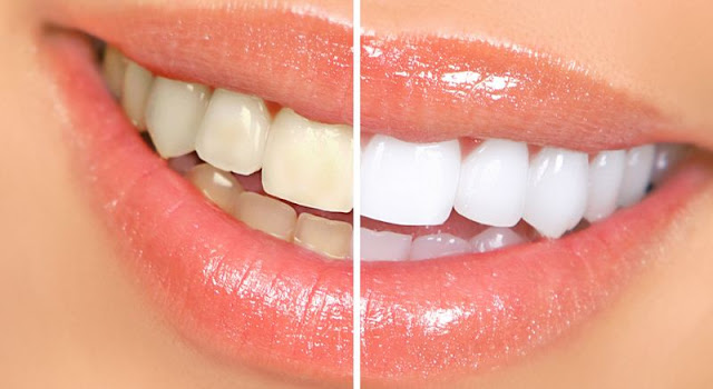 Amazing 3 minute tip on how to get a naturally white teeth!