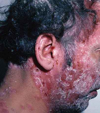 Atopichesky la dermatitis priva